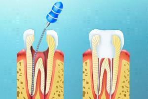 Лечение корневого канала-2