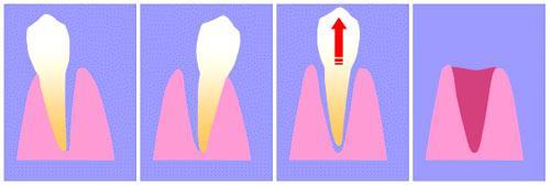 Удаление сложного зуба